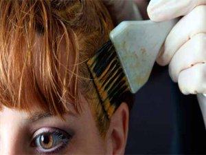 Saç boyası hayatını cehenneme çevirdi!
