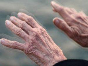Parkinson cerrahisinde hasta seçimi