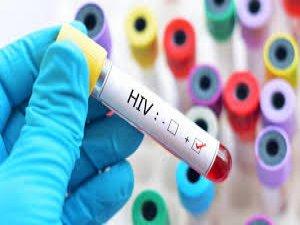 İlk kez yeni bir HIV türü keşfedildi