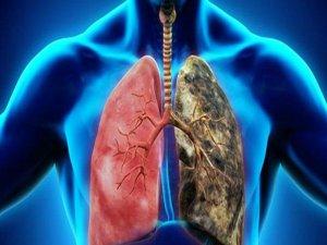 Akciğer kanserinde kemoterapi ihtiyacı azalıyor