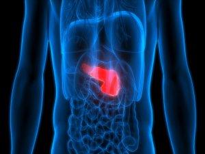 Pankreas kanserinde umut ışığı artıyor