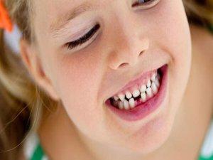 Süt dişlerini koruyan öneriler
