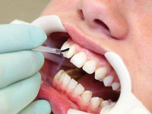 Diş estetiğine dikkat