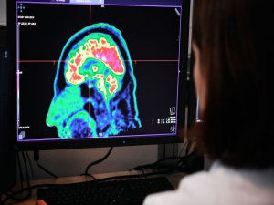 Alzheimer hastaları için yeni umut