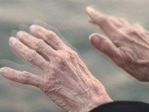 """""""Parkinson tedavisi kişiye özeldir"""""""