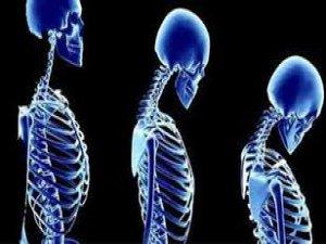 Kemik erimesine karşı bunları yapın
