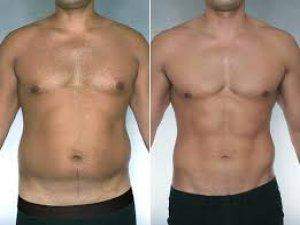 Liposuction'a ilgi artıyor