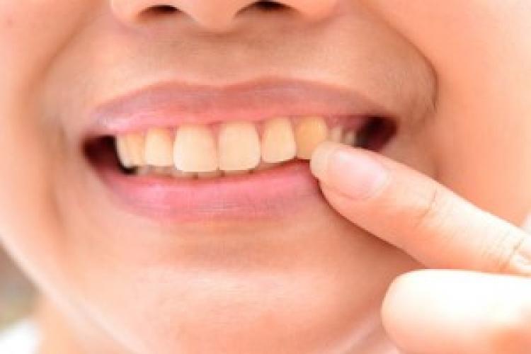 Diş çürükleri metabolizmayı etkiliyor