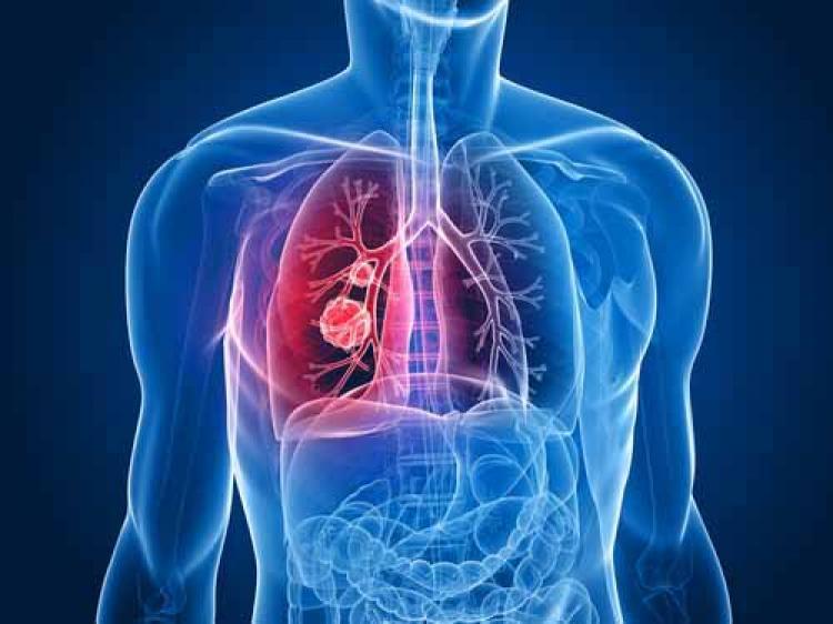 Akciğer kanserinde hedefe yönelik tedavi umudu