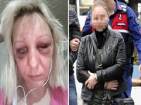 Kırgız kadına korkunç işkence!