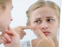 Akne Sorununa Karşı 5 Önemli Öneri