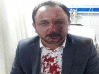 Bursa'da Sendika Başkanı'na saldırı