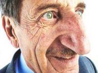 'Karadenizlilerin burnu küçülecek'